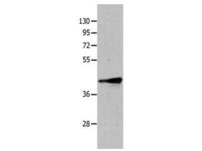 TRIM63 Antibody