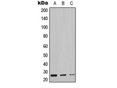 Anti-LYPLA1 Antibody