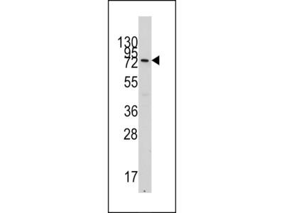 VE Cadherin Antibody (CDH5) (N-term)