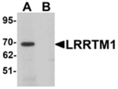 LRRTM1 Antibody