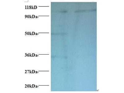 Rabbit anti-human Exostosin-like 3 polyclonal Antibody; Biotin conjugated