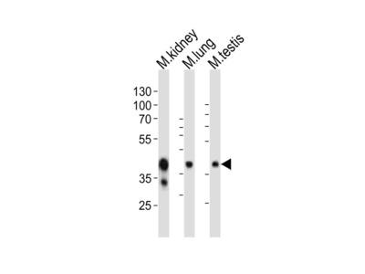 (Mouse) Epcam Antibody (C-term)