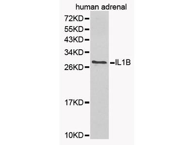 IL1B Antibody