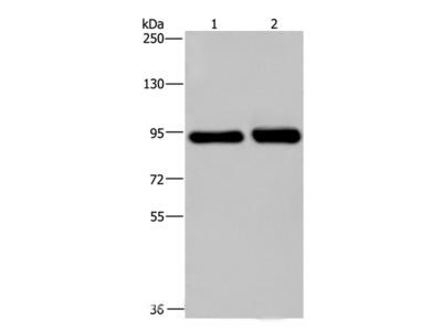 PMS2 Polyclonal Antibody