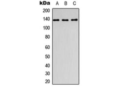Anti-Collagen 1 alpha 1 Antibody