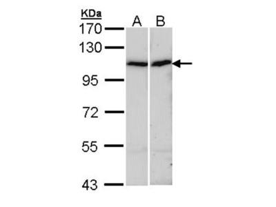 alpha Actinin 4 antibody