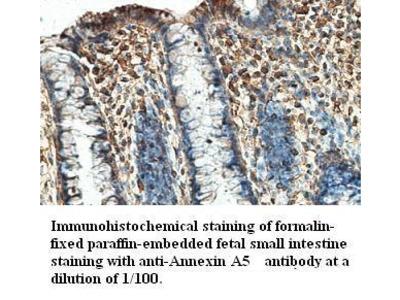 Annexin A5 Antibody