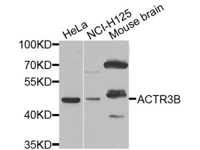 ACTR3B Polyclonal Antibody