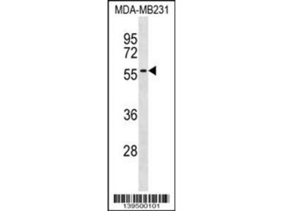 AKAP5 Antibody (Center)