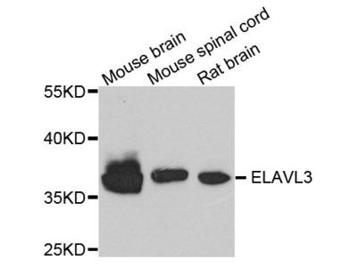 ELAVL3 Polyclonal Antibody