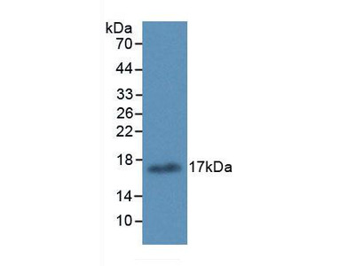 Monoclonal Antibody to Arachidonate-15-Lipoxygenase (ALOX15)