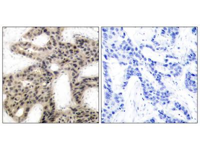 4E-BP1 (Phospho-Thr45) Antibody