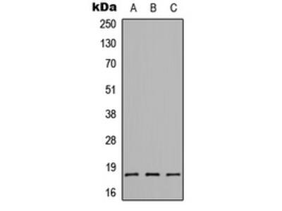Anti-CMTM1 Antibody