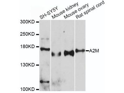 A2M Polyclonal Antibody
