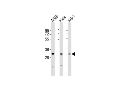 PYCRL Antibody (C-term)