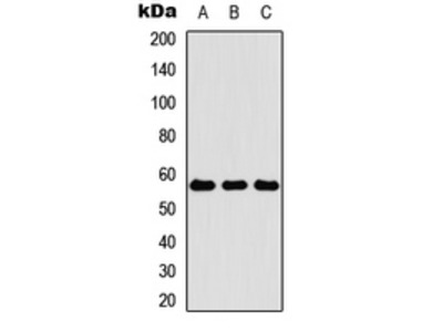 Anti-Cytokeratin 4 Antibody