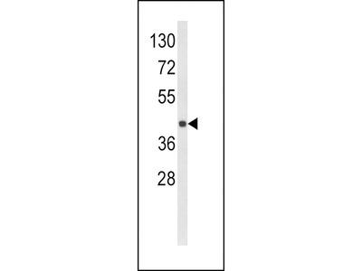 HLA-E Antibody (Center)