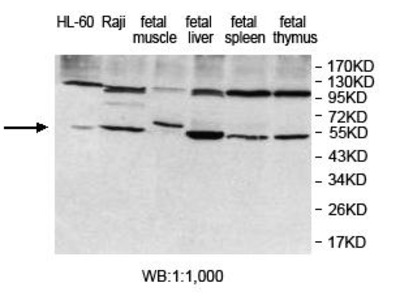 Anti-KDELC1 Antibody