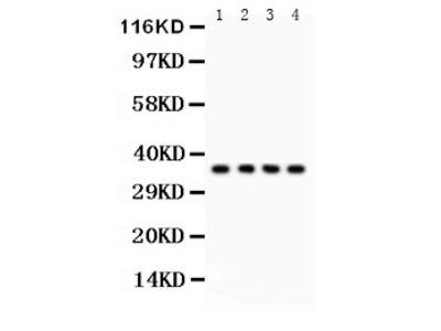 Anti-Podoplanin/gp36 antibody