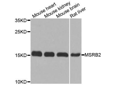 MSRB2 Polyclonal Antibody