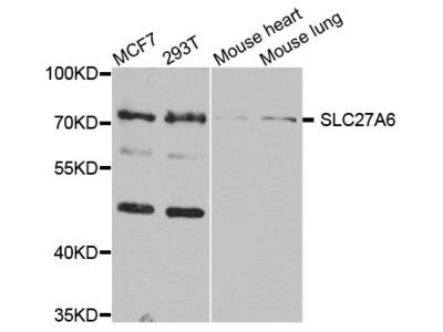 SLC27A6 Polyclonal Antibody