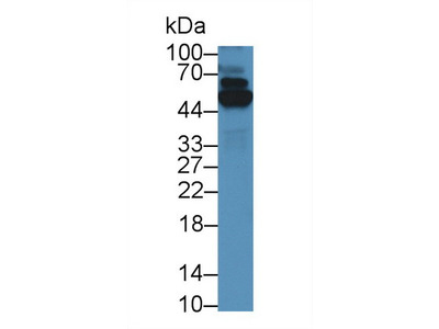 Polyclonal Antibody to Thioredoxin Reductase 1 (TrxR1)