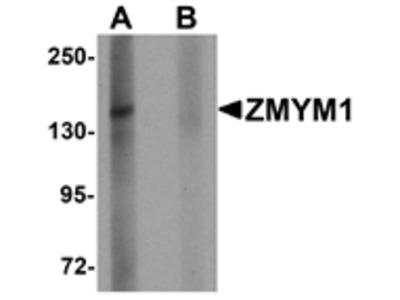 ZMYM1 Antibody