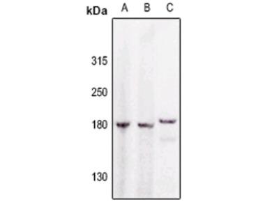 Anti-GAK Antibody