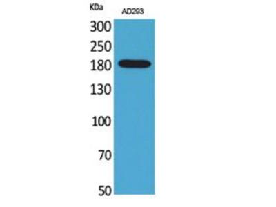 Macroglobulin alpha-2 Polyclonal Antibody