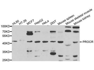 PROCR Antibody