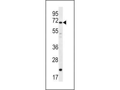 DAZ4 Antibody (Center)