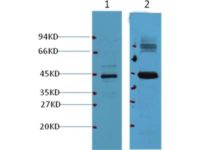 AMACR/P504S Mouse Monoclonal Antibody