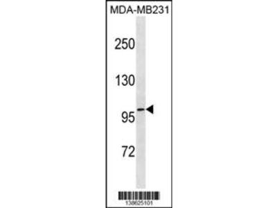 TCHHL1 Antibody (N-term)