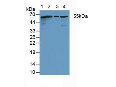 Polyclonal Antibody to Coxsackie Virus And Adenovirus Receptor (CXADR)