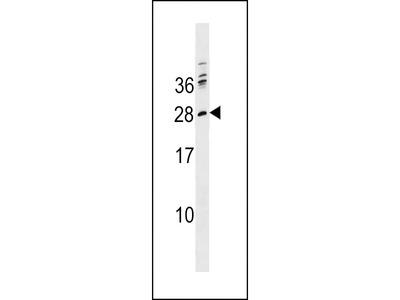 PTCRA Antibody (C-term)