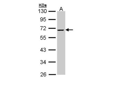 alpha-2 antiplasmin antibody
