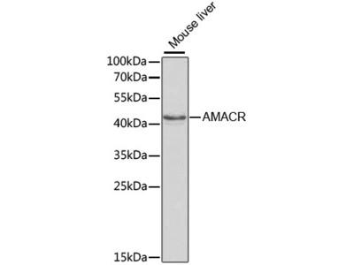 AMACR Polyclonal Antibody