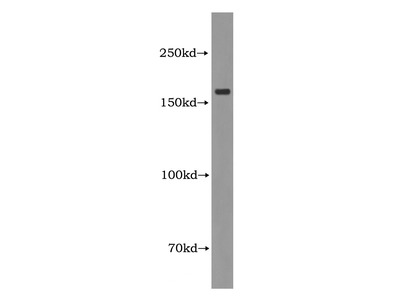 CIT Antibody