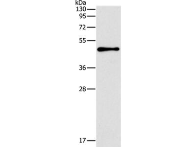 TFAP2B Antibody