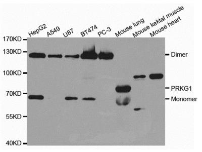 PRKG1 Antibody