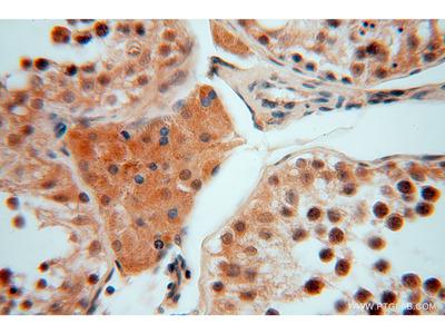 SMYD1-Specific antibody