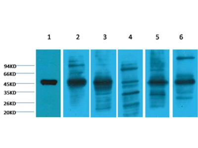 Cytokeratin 18 Mouse Monoclonal Antibody (8F2)