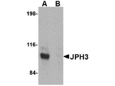 JPH3 Antibody