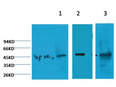 Cytokeratin 18 Mouse Monoclonal Antibody (2F7)