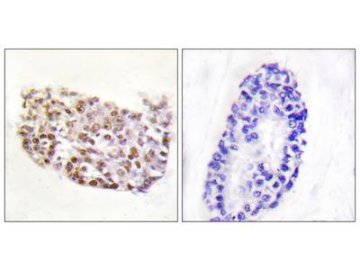 NFAT5 Polyclonal Antibody