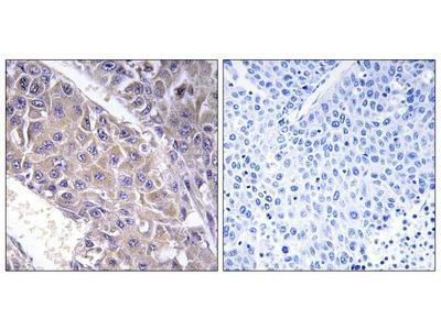 B4GALT3 Polyclonal Antibody