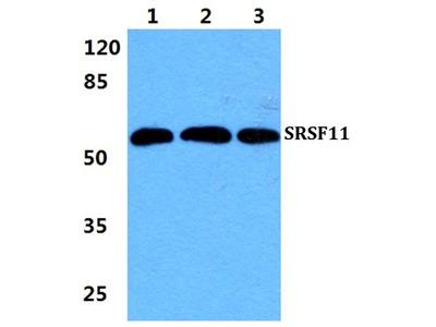 SRSF11 Polyclonal Antibody