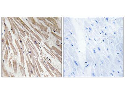 ARPP21 Polyclonal Antibody