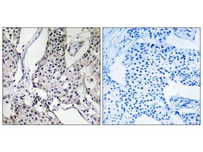 PHLDA3 Polyclonal Antibody