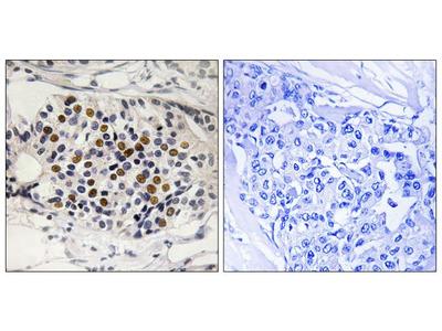 Phospho-p16INK4a (Ser152) Polyclonal Antibody